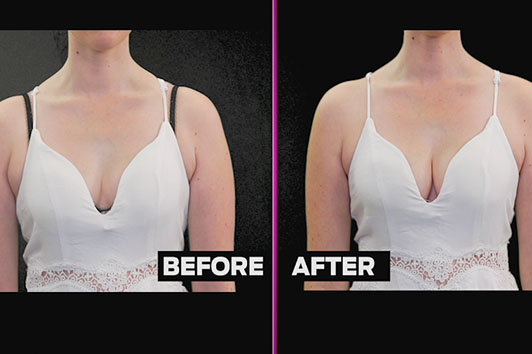 The hidden boost bra gives you a hot body and great shape and curves