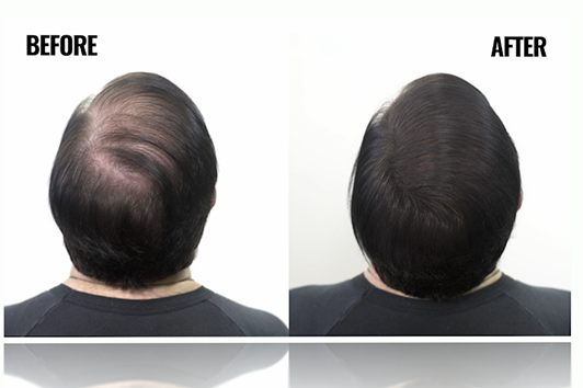 Get an instant full head of hair, look at the before and after