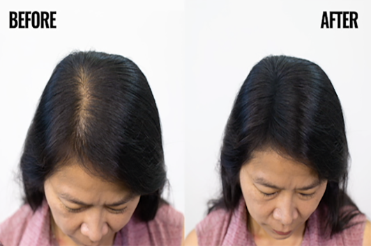 Perfect for females with thinning hair and hair loss
